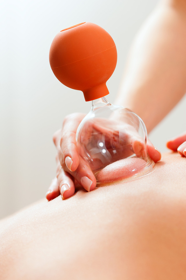 Cupping - Zoneterapi og Massage - Frederiksberg